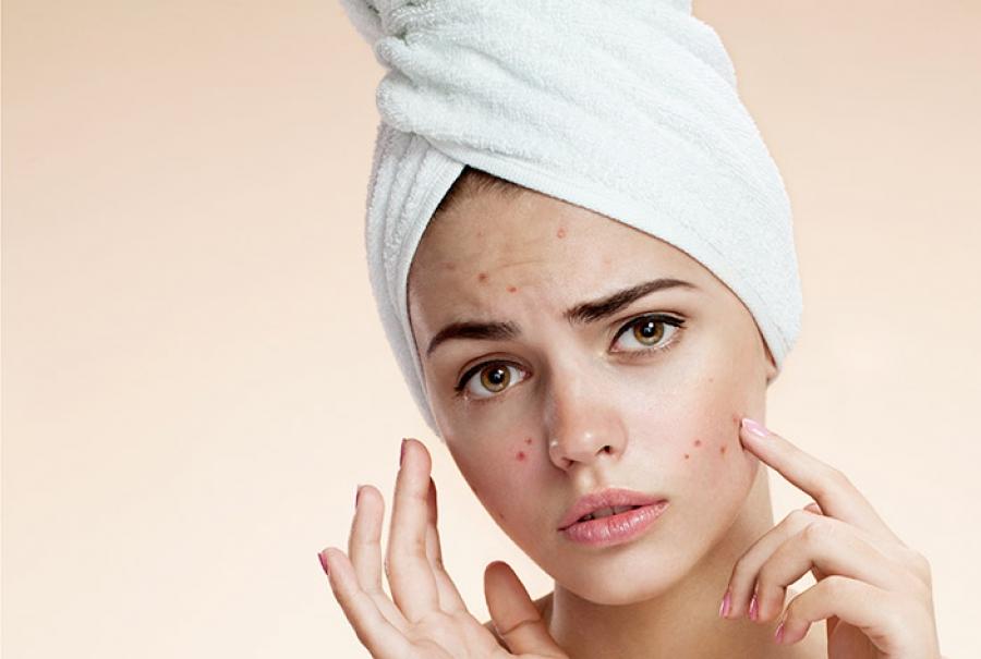 جوشن زدن یا تشکیل آکنه روی صورت ناشی از آسیبهای لوازم آرایشی