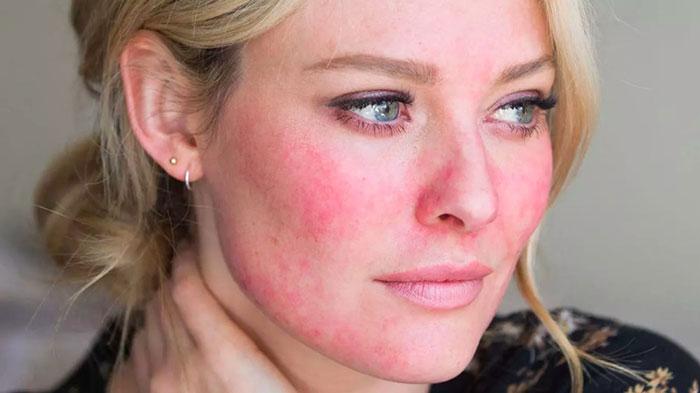 راش پوستی ناشی از آسیبهای لوازم آرایشی